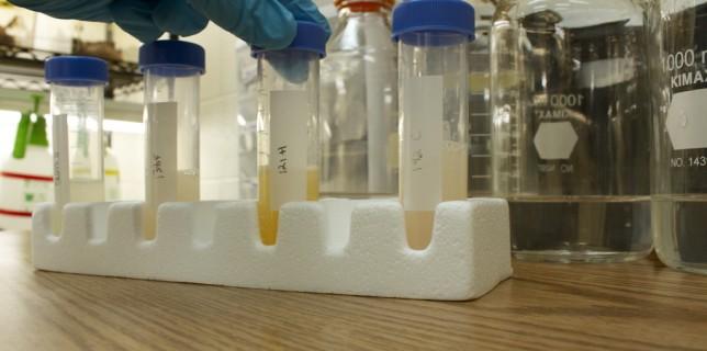 Προβιοτικά: πιθανή βοήθεια στη μείωση της αρτηριακής πίεσης